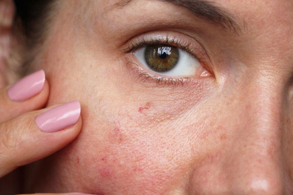 peau sensible
